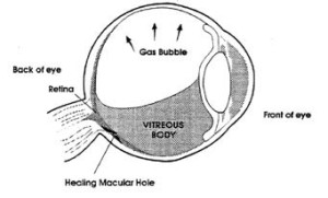 healing vitreous gas bubble