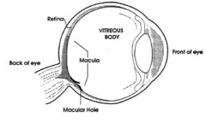 vitrectomy eye surgery